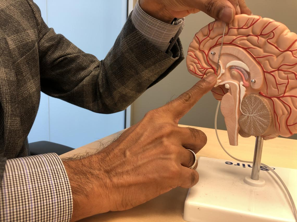 The stimulation device is placed in the subcallosal cingulate, an area of the brain believed to play an important role in depression.