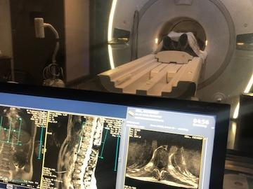 Magnetic Resonance Imaging shows the stimulator's positioning in the body.