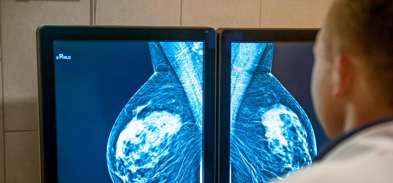 Hero breast cancer jpg?h=158207ab&itok=5s6XuBZ7.'
